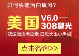 郑州308准分子激光治疗白癜风效果怎么样